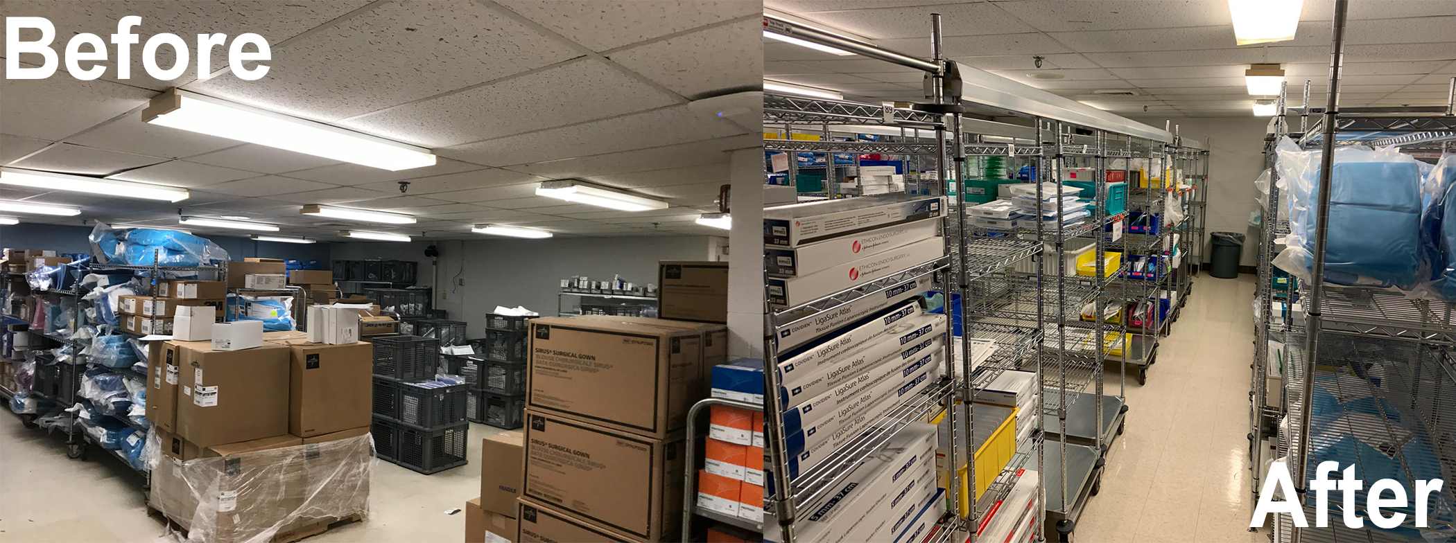 before and after lean supply management